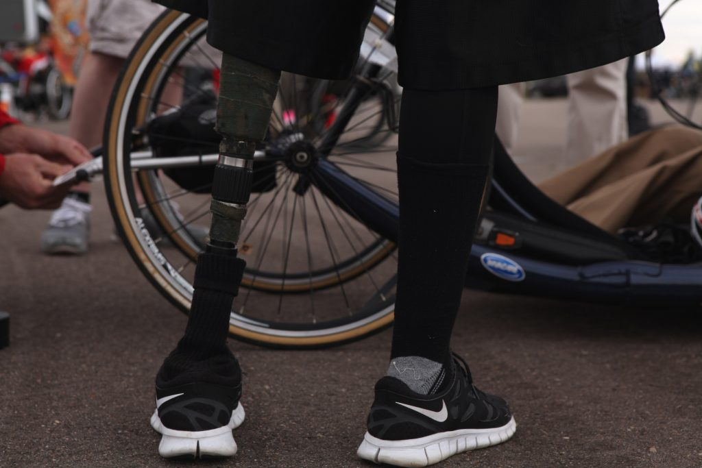 photo shows amputee with prosthetic leg standing next to bicycle - legs from knee to foot only showing in image.