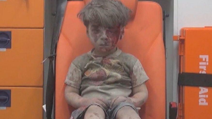 Syrian boy injured by bombing