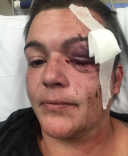 Linda Tirado, photojournalist hit by a police projectile in Minneapolis while she covered the George Floyd protests. Emergency room photo shows extreme trauma to left eye, which later was determined to have caused permanent partial blindness.